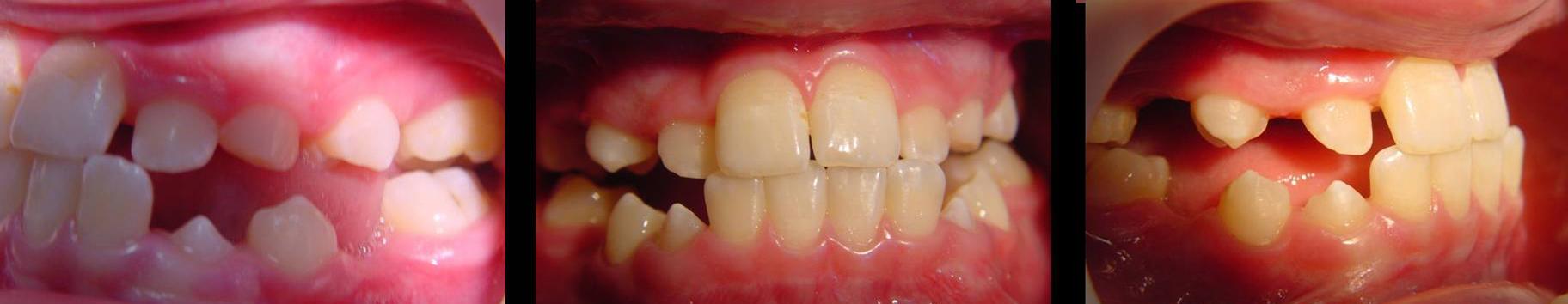 аномалии прикуса, неровные зубы, исправление зубов, лечение зубо-челюстных аномалий, исправление прикуса